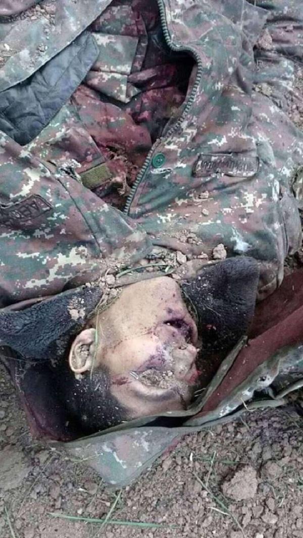 Кто они, военнослужащие, от которых отказалась Армения? – ШОКИРУЮЩИЕ ФАКТЫ (ФОТО 18+)