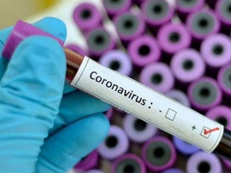 2020/03/koronavirus_1585572132.jpg